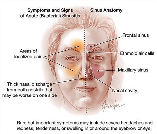 [Image: acute-sinusitis46.jpeg]