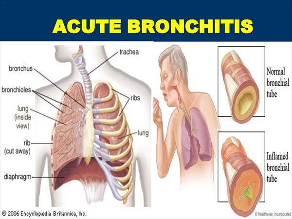 Bronchitis Diagnosed: What is Chronic Bronchitis? Acute37