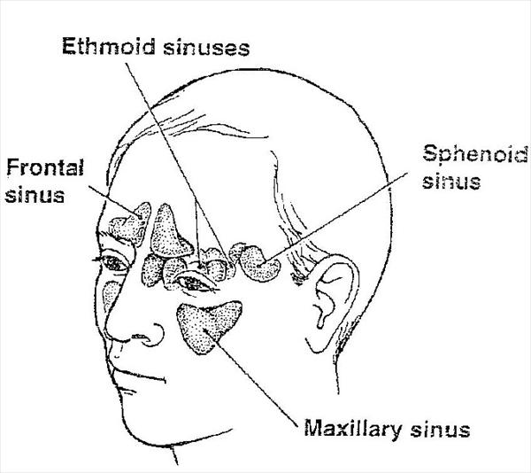 [Image: allergic-fungal-sinusitis5.jpeg]
