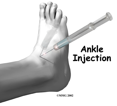 Kidneys and Gout Ankle-osteoarthritis-treatment