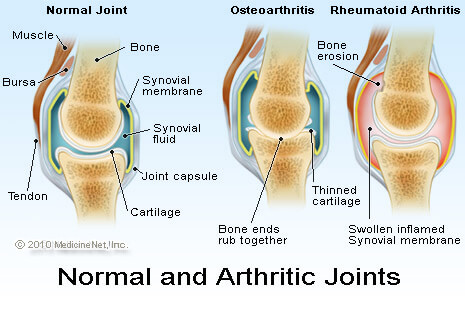 Kidney Stone Stents and Arthritis Arthritic-joints26