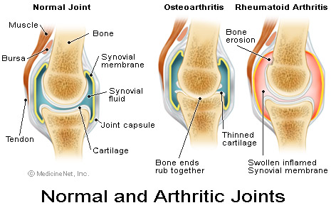 Uric Acid Crystals and How Does Fluid Intake Cause, Affect, Arthritic-joints48