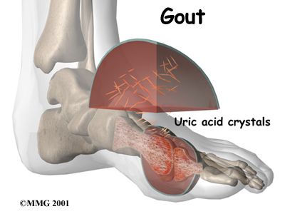 high uric acid and joint pain gout symptoms and remedy coconut water helps gout