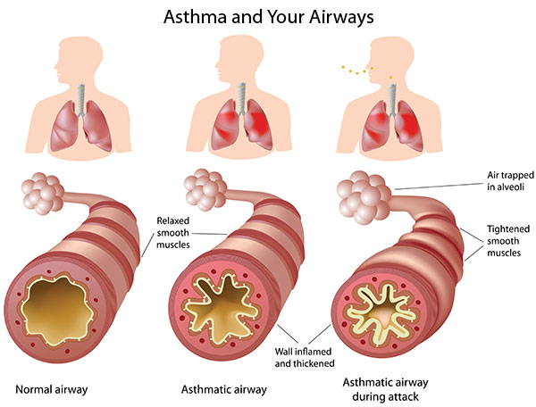 Diseases that Affect the Respiratory System: Bronchitis Asthma-airways-lg593