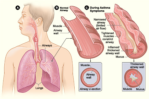 How Does Smoking Trigger COPD Asthma-info36