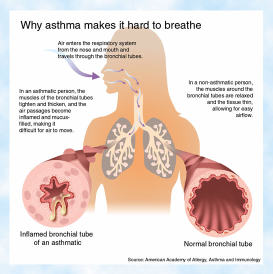 Forms and Types of Bronchitis Asthma356