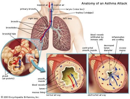 Treatment for Bronchial Infections and Wheezing in  Asthma91