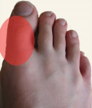 Gout and Related Symptoms B-cbe-c-def-f-f