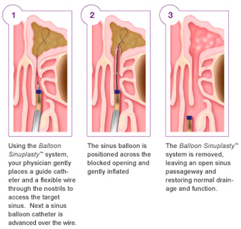 Balloon Sinuplasty: Best Method to Treat Sinusitis Balloon