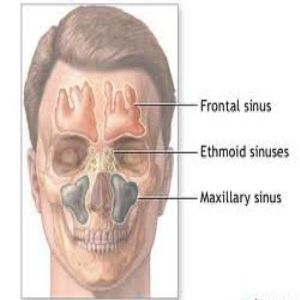 Sinus Sign and Herbal Treatment for Sinus and How Sinus  Bf-bc-dd-fb-d-b-b