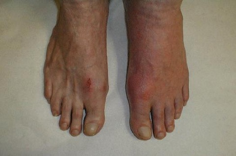 Neutralizing Uric Acid Will Cure Gout Big-toe-gout2
