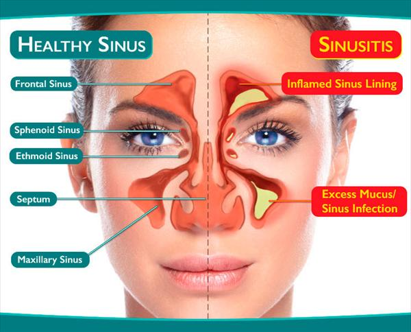Sinusitis Chronic and Balloon Sinuplasty and a Safe  Boynton-sinus-diagram6