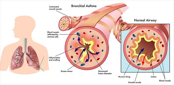 Bronchitis Compared to Asthma Bronchial-asthma6
