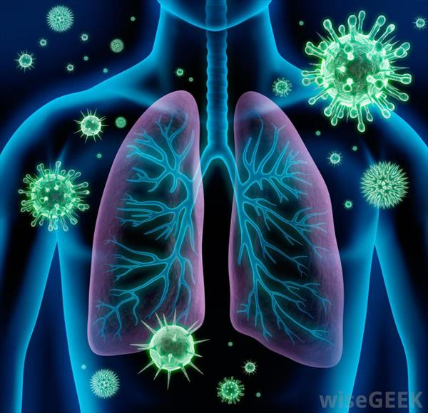 Factors Or Conditions That Impersonate Asthma Bronchitis-bacteria
