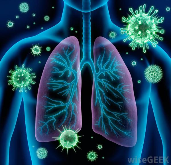 Persistent Phlegm Cough and Bronchitis Remedies and What Bronchitis-bacteria71