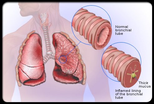 Causes Cures for Bronchitis Bronchitis-diagram110