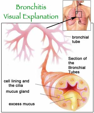 Viral Bronchitis Mucus Bronchitis-diagram943