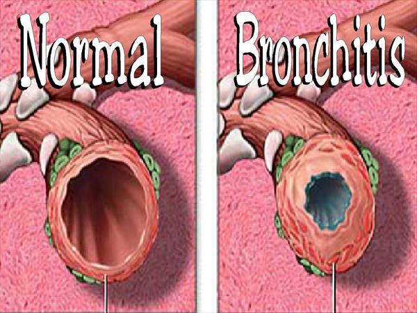 What is Bronchitis Infection and Bronchitis Treatment  Bronchitis-grpahic-a556