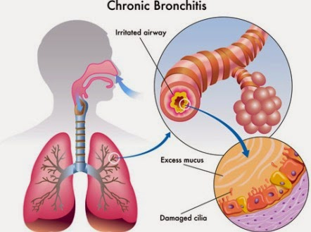 Information Symptoms of Bronchitus Infection  Bronchitis-info