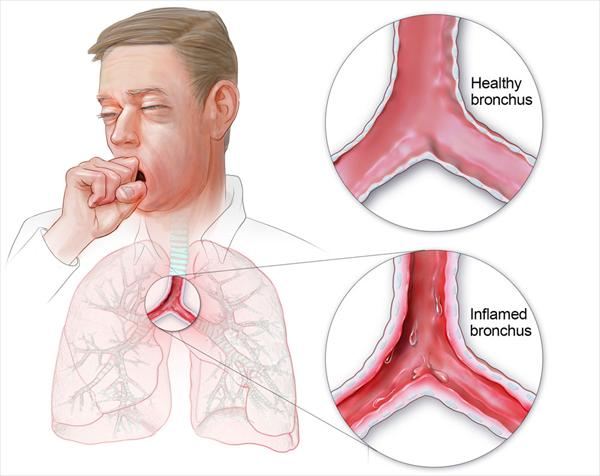 Reasoning Out the Causes Bronchitis-lg73