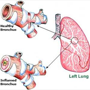 Non Drug Cure for Bronchitits and Exercise Benefits  Bronchitis-picture3