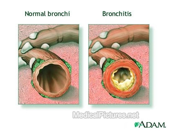 Chronic Bronchitis Symptoms and How to Recognize Bronchitis Bronchitis-pictures