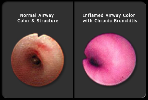 Treatment of Chronic Bronchitis Copd and is My Bronchitis Bronchitis-s-camara-image77