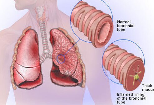 Bronchitis Cause Lung Tissue Scars and Bacterial Bronchitis Bronchitis-s-diagram35