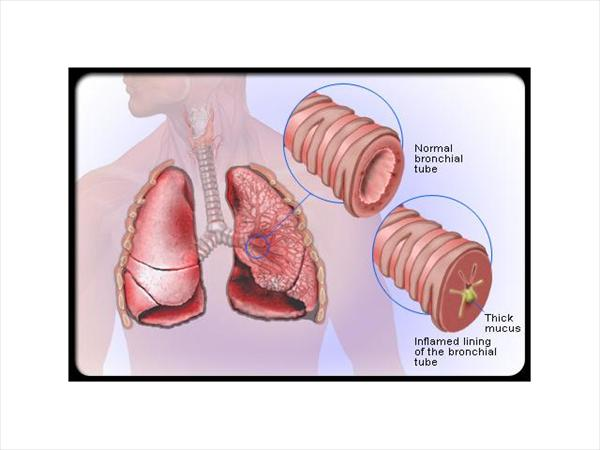 Asthmatic Bronchitis: Causes of Bronchitis and Symptoms  Bronchitis-s-diagram911
