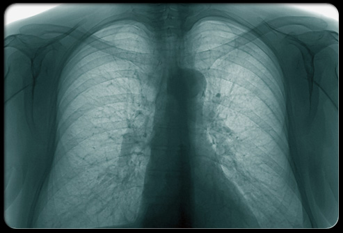 [Image: bronchitis-s-x-ray35.jpeg]