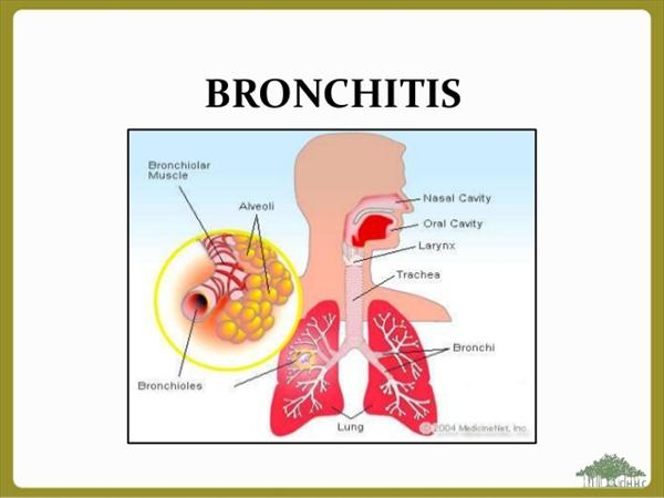 is There a Treatment for Chronic Bronchitis Bronchitis0638