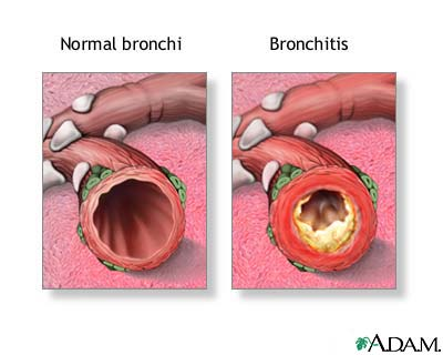Bronchial Staph Infections, is Asthmatic Bronchitis Bronchitis40060