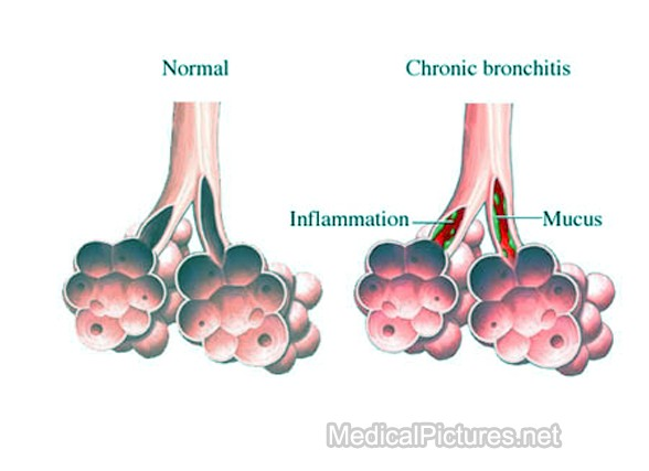 Chronic Bronchitis Coughing: How to Recognize Bronchitis Bronchitis429