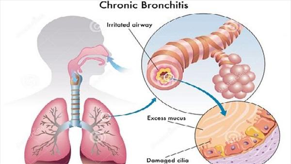 [Image: bronchitis4509.jpeg]