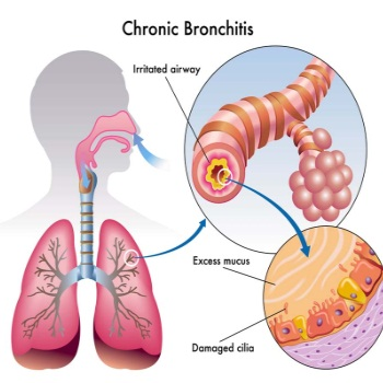 [Image: bronchitis4770.jpeg]