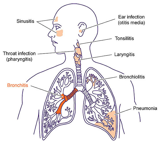 Akute Obstruktive Bronchitis: Bronchitis Medicine: Some Bronchitis802