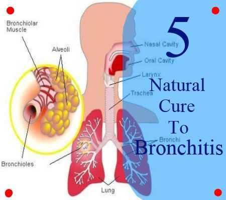 [Image: bronchitis9385.jpeg]