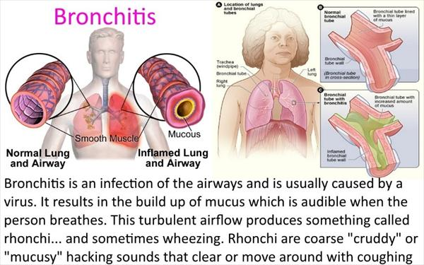 Chronic Asthma Bronchitis, Lung Infection Types Bronchitis987