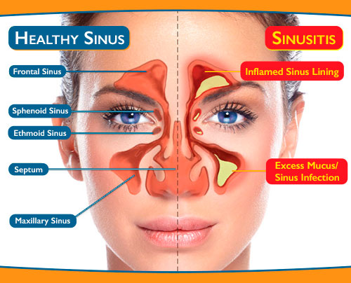 [Image: broward-sinus-diagram.jpeg]