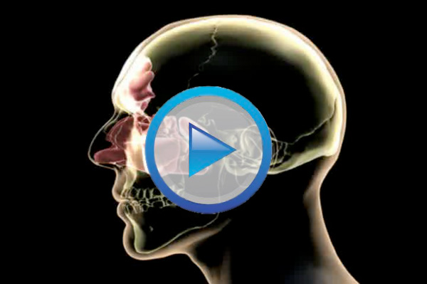 Symptoms Sinusitis and What is Balloon Sinuplasty? Btn-play-movie01