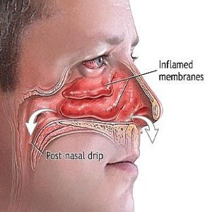 Sphenoid Sinus Polyp and Sinus Infections and Why C-a-dad-d