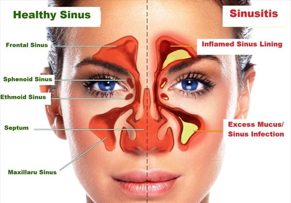 How can I Tell If I Have a Sinus Infection? Ca-c-a-c-aedac-f-d-e42