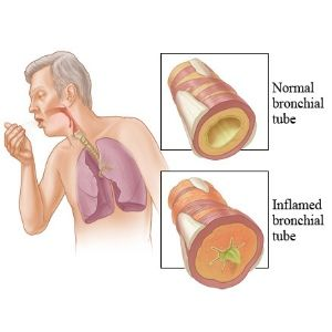 Symptoms of Allergic Bronchitis, What are the Signs  Cbdeee-ac-f-d-ec-aec-a