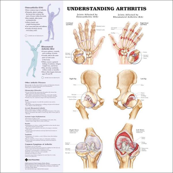 Herbs and Ayurvedic Remedies, Arthritis Symptom and Other Chart-arthritis9