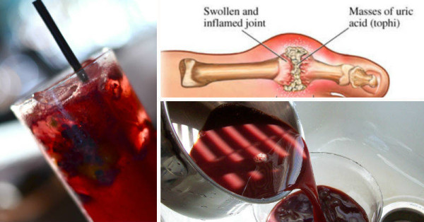 Alkaline Water as a Natural Gout Remedy Cherry-juice-x