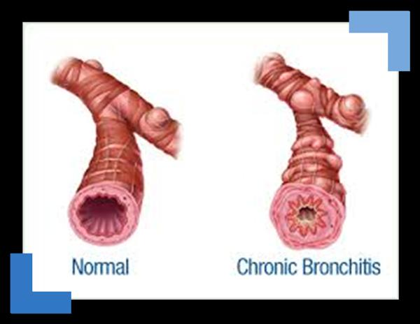 Bronchitis Rauchen Chronicbron