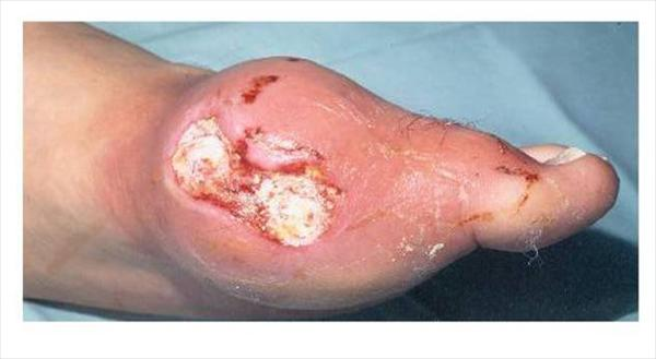 What is Gout? Chronicgout90