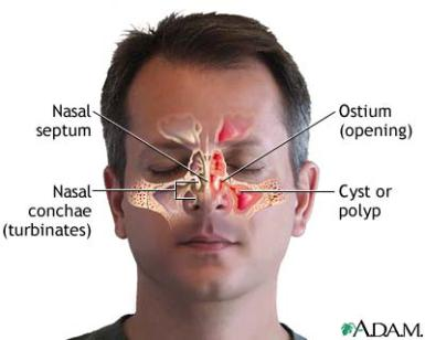 Sinus Infection and the Problem With Nasal Infections Chronicsinusits05