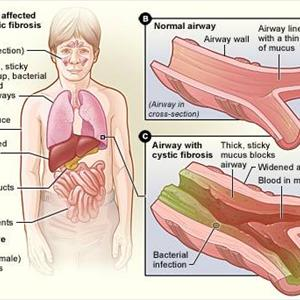 How is Bronchitis Treated? Clip-image4