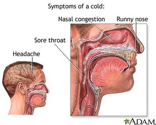 Tratamientos Sinusitis and Help Yourself to Relieve Common-cold2
